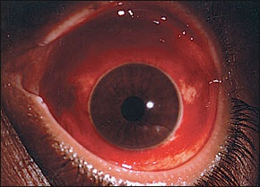ruptured globe eye injuries - 290×208